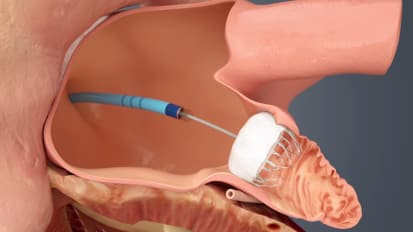 New Watchman Device, Delivery System Prevents Blood Clots
