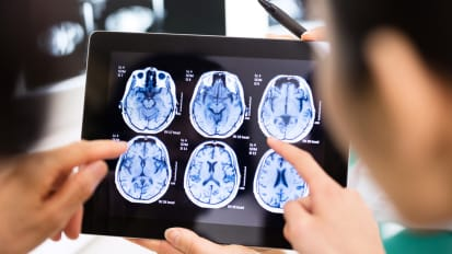 Optimizing Care Following Traumatic Brain Injury: Rapid Laboratory Test Offers Opportunity for Paradigm Shift