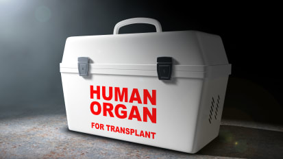 Solid Organ Donation After Death in the United States: Data Driven Messaging to Encourage Potential Donors