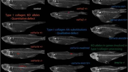 Orthopaedics and Sports Medicine Researchers Find Valuable Similarities Between Connective Tissue Disorders in Mutant Zebrafish and Humans