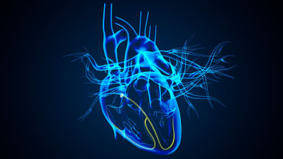 13th Annual Cardiovascular Disease Update: TRACK ONE