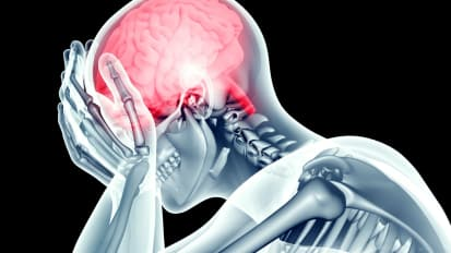 Behavioral Health and Depression Issues Post-Stroke