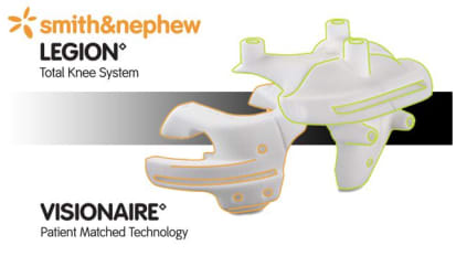 LEGION™ Total Knee System with VISIONAIRE™ Patient Matched Instrumentation