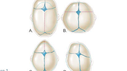 A Case of Non-Syndromic Craniosynostosis