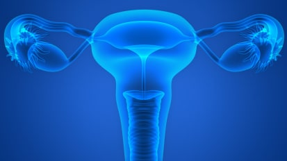 Care for Women with PCOS: The Multidisciplinary Care Model