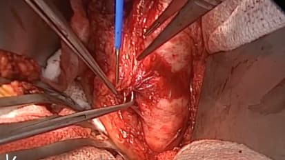 Open Aorta Proximal Anastomosis Case - Part 2 of 4