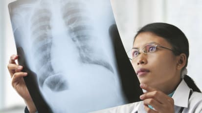 Lung Cancer Screening: Who Needs It?