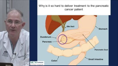 Staging, Treatment Sequencing, and Personalized Medicine for Localized Pancreatic Cancer: The Medical College of Wisconsin Experience, Douglas B. Evans, MD