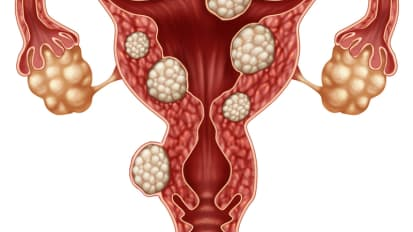Types and Classifications of Fibroids
