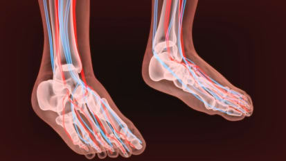 Limb Preservation for Patients with Diabetic Foot Ulcers