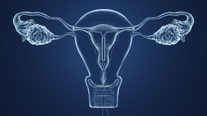 Treatment Options for Fibroids