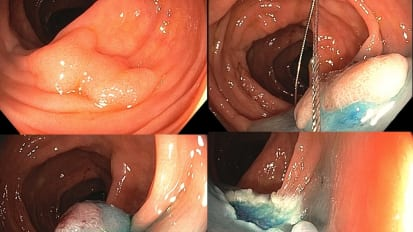 Mastery of Colonoscopic Polypectomy