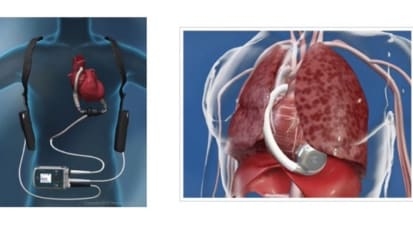Heartmate II/III and HeartWare HVAD Overview