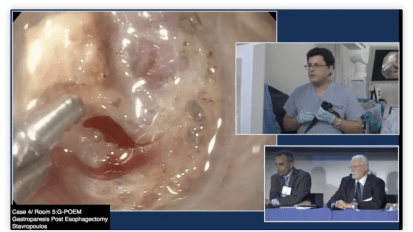 Gastric Per Oral Endoscopic Myotomy for Gastroparesis
