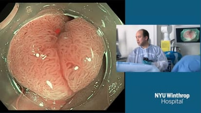 2018 LI Live: Live Endoscopic Procedures - Morning Part 2 of 2
