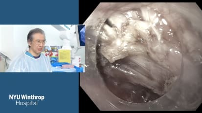 Submucosal Tunneling Endoscopic Resection (STER) for Esophageal Leiomyoma