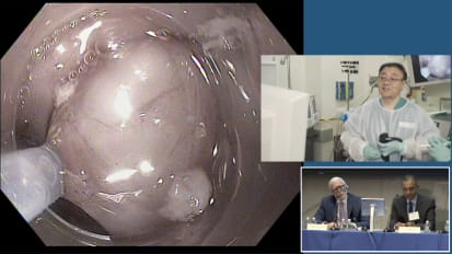 Submucosal Tunneling Endoscopic Resection (STER) for Esophageal Gastrointestinal Stromal Tumor (GIST)