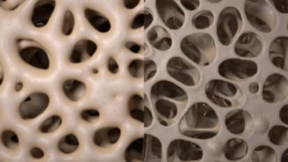 Osteoporosis Risk Factors and Treatments