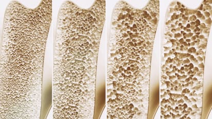 Osteoporosis and the UCSF Metabolic Bone Clinic