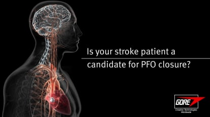 Is your stroke patient a candidate for PFO closure?