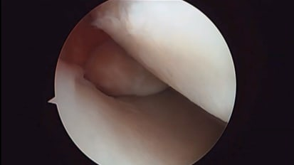 Medial Meniscus Root Tear with Bone Fragment: Repair Technique