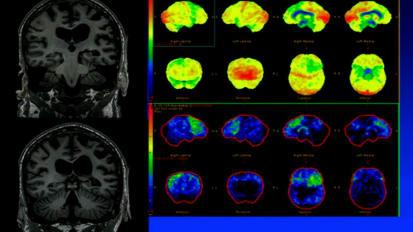 西班牙语的病例研讨会:痴呆症患者没有老年痴呆症