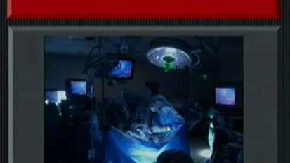 西班牙语:Cirugia Robotica en Ginecologia