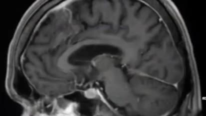 Neurosurgical Conditions on Adult MRI of the Brain
