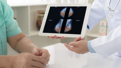 Breast MRI and Advanced Breast Intervention