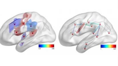 Predicting Language Deficits after Stroke with Connectome-Based Imaging