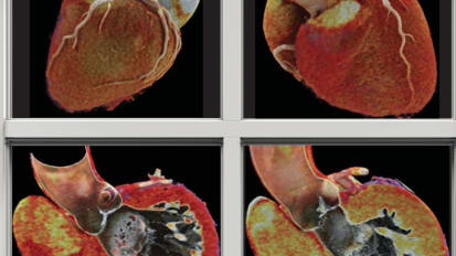 Windows to the Heart: Safer Faster CT Technology Produces Images that Give New Clinical Insights into Coronary Artery Disease