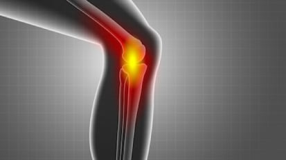 Knee Cartilage Transplants Help Patients Regain Mobility