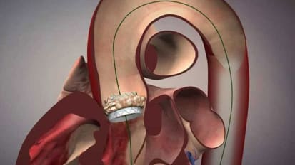 Device test may determine near future of aortic-valve repair