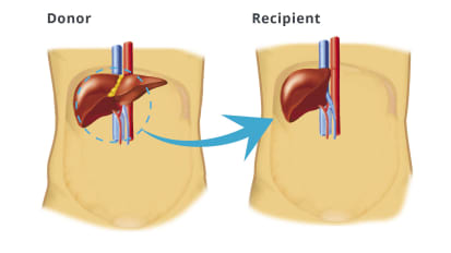 Adult-to-Adult Living Donor Liver Transplantation