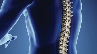 University Hospitals Cleveland Medical Center Leads the Way in Minimally Invasive Spine Surgery and Multidisciplinary Care