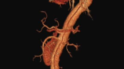 TEVAR for Type B Aortic Dissection