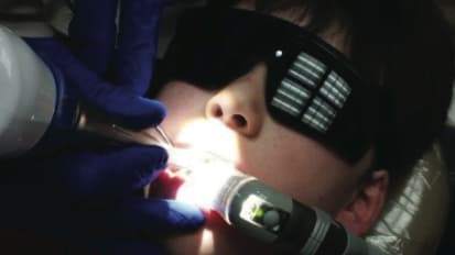 New Laser Technology Takes the Pain Out of Dentistry