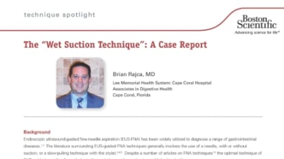 "The ""Wet Suction Technique"": A Case Report, Presented by Brian Rajca, MD"
