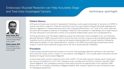 Endoscopic Mucosal Resection can Help Accurately Stage and Treat Early Esophageal Cancers, Rehan Haidry, MD