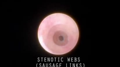 Use of a Basket to Stretch Stenotic Webs