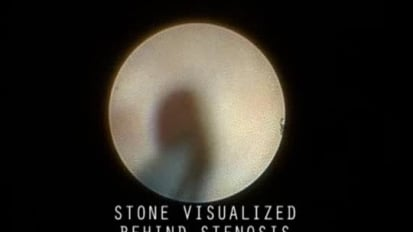 Visualizing a Stone Behind a Stenosis
