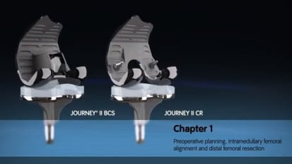 JOURNEY II Active Knee Solutions - Chapter 1