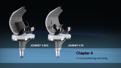 JOURNEY II Active Knee Solutions - Chapter 4