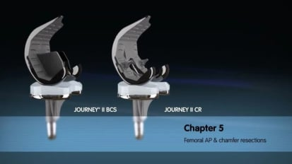 JOURNEY II Active Knee Solutions - Chapter 5