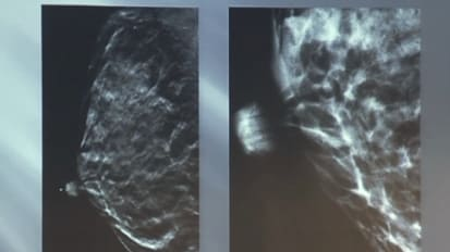 Update on Breast Imaging Tomosynthesis Rita I. Freimanis, M.D.