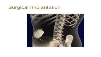 Intrathecal Baclofen Therapy
