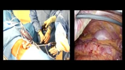LESS Cholecystectomy Suggestions & Tips: Step 14 - Removing the Gallbladder from the Liver Bed