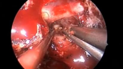 Endoscopic Removal of Craniopharyngioma
