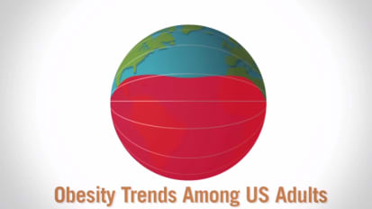 Over the Years: Obesity in the United States