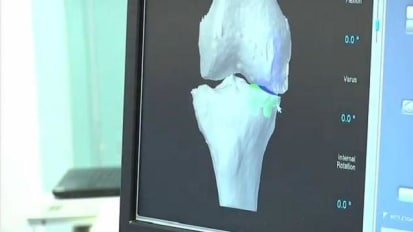 St. David's Center for Joint Replacement - MAKO Robotic Knee Replacement